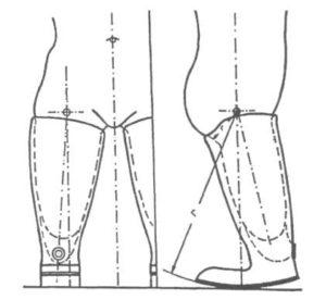 Короткие протезы после двусторонней ампутации бедра