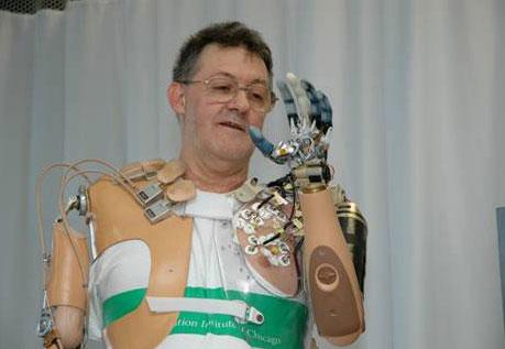7657 large bionicprosthetic 1