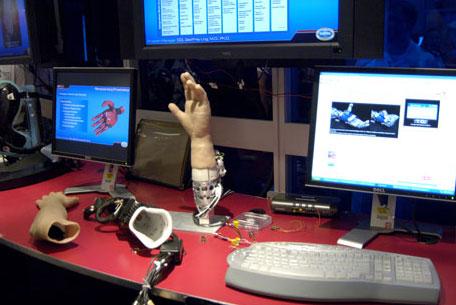 7658_large_bionicprosthetic-2
