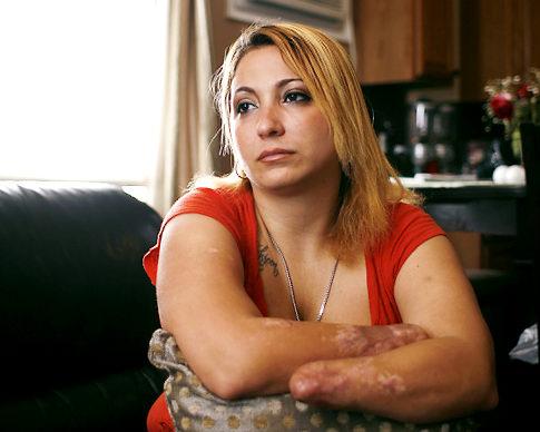 Женщина, которая дважды потеряла руки, проявляет стойкость
