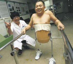 Мужчина, которому ампутировали половину тела, удивляет хирургов своей жизнеспособностью
