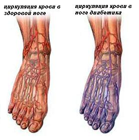 Проблемы с ногами при сахарном диабете