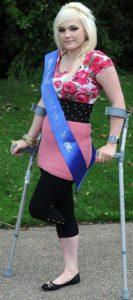 Девушка без ноги примет участие в конкурсе «Мисс Англия»