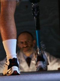 Протезирование после ампутации нижней конечности