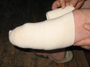 Процесс реабилитации, подготовка к использованию протеза