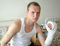 «Когда летел в Киев, думал лишь об одном: «Спасут ли мою руку? пришьют ли все пальцы?»