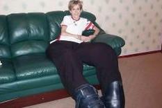 Редчайшее заболевание привело к ампутации ног