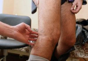 Пересадка ног-достижение испанских врачей