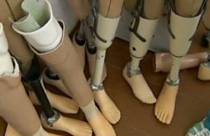 Протез, который мало чем отличается от настоящей ноги