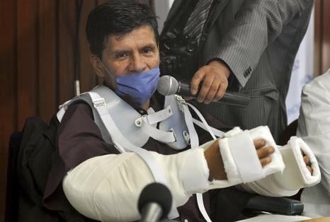 В Мексике успешно прошла 17-часовая операция по одновременной пересадке обеих рук