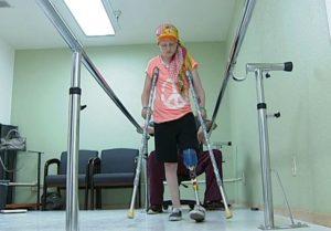 Современные протезы рук и ног помогают жить