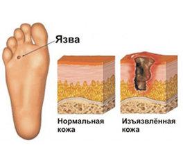 Диабетическая стопа. Поражения ног при сахарном диабете