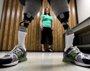Сделаны протезы ног, управляемые силой мысли