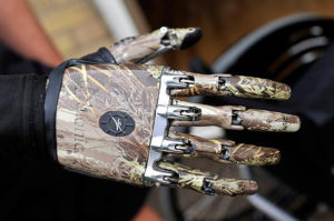 Майк Свайнгер — первый человек в Великобритании, которому был поставлен бионический протез руки
