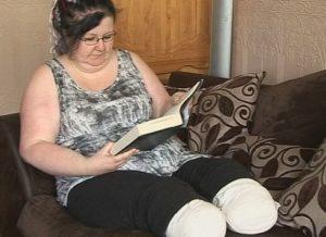 Женщина из Сандерленда проходит восстановление после ампутации ног