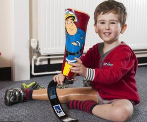 Детский протез ноги позволит ребенку-инвалиду заняться спортом