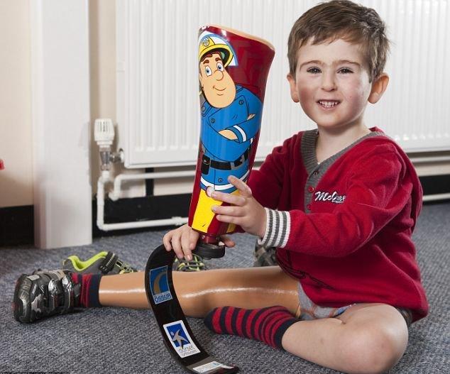 Детский протез ноги позволит ребенку-инвалиду заняться бегом