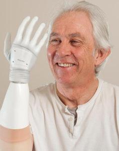 В Великобритании пациенту установили уникальный бионический протез руки нового поколения