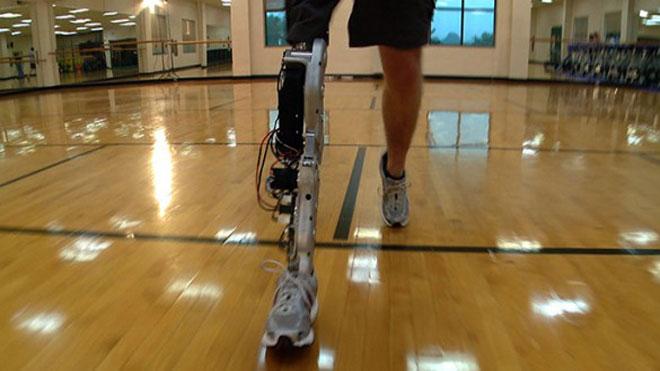 Ранняя версия протеза, созданного в Center for Intelligent Mechatronics