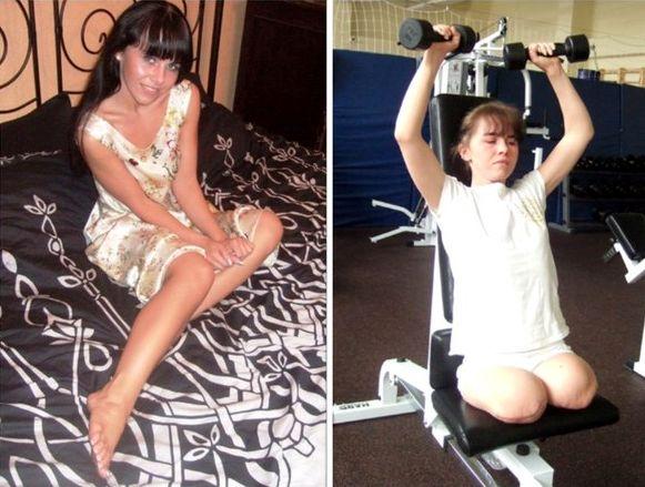 Настя Белковская до и после аварии