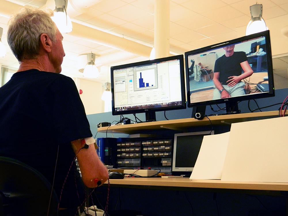 Пациент с ампутированной рукой управляет виртуальной рукой