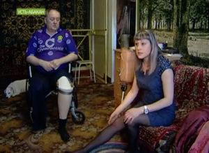 Техники-протезисты сделали инвалиду протезы, на которых он не может передвигаться