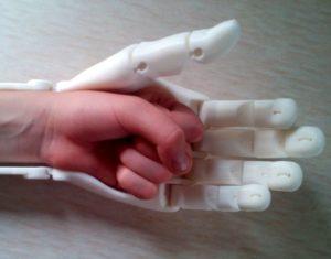 Будущее протезирования с помощью 3D-печати