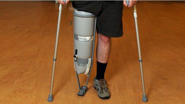 140811131422_prosthetics_bbc_leg_amputee_624x351_bbc_nocredit
