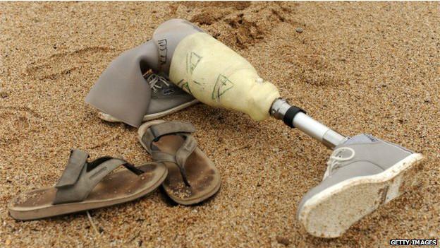 140811135123_prosthetics_artificial_leg_624x351_getty_nocredit