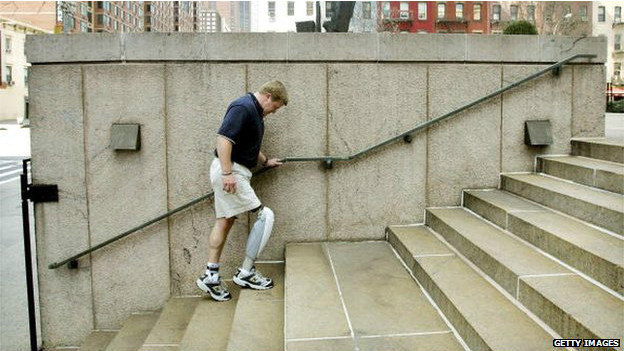 140811135340_prosthetics_artificial_leg_624x351_getty_nocredit