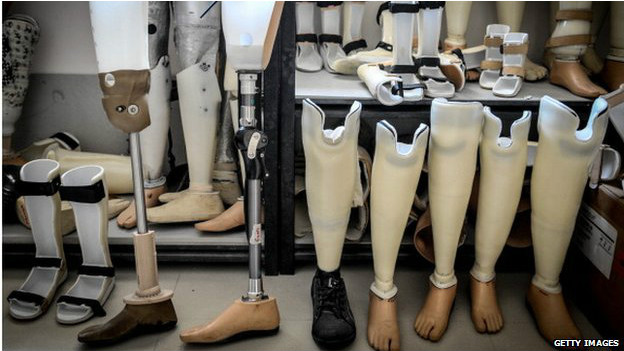140811135435_prosthetics_artificial_leg_624x351_getty_nocredit