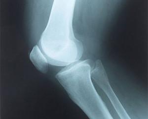 рентгеновский-снимок-300x240