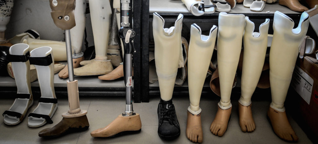 Bali Clinic Produces Prostheses For Local Community