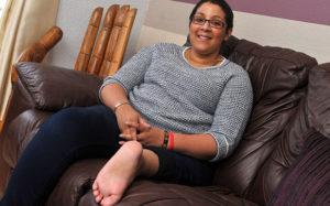 Хирурги реконструировали коленный сустав после частичной ампутации ноги