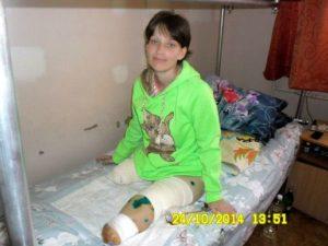 Девушка осталась без обеих ног в результате военных действий