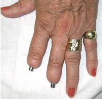 Имплантаты для пальцев рук