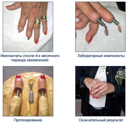 Сколько стоит искусственный сустав указательного пальца расходящаяся повязка на локтевой сустав