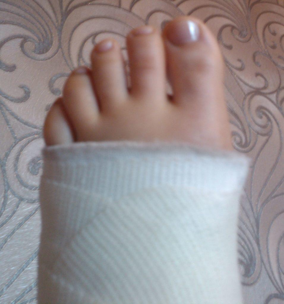 Некачественный протез, из-за которого пациентка сломала вторую ногу, стоил компании-ООО «Протезка» 139 тыс. руб.