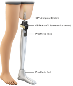 Osseoanchored Prostheses for the Rehabilitation of Amputees
