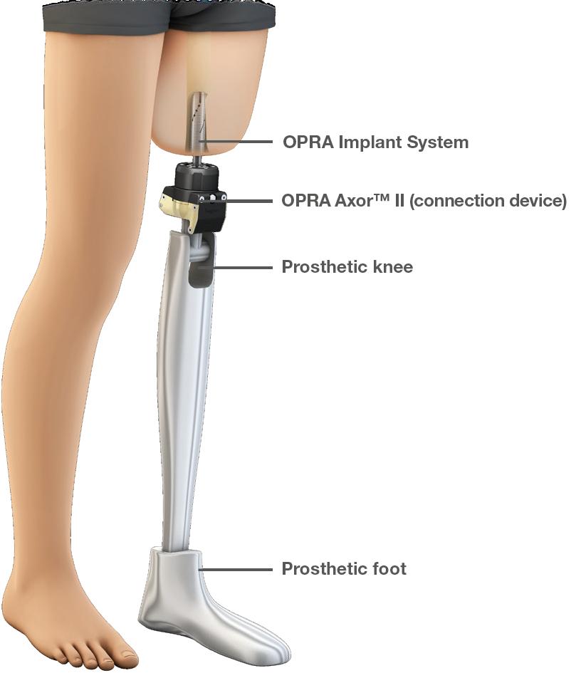 Протез коленного сустава сша мидокалм артроз каленного сустава
