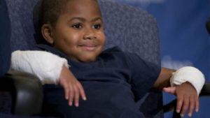 8-летний мальчик из Мэриленда — самый юный пациент в США, которому сделали пересадку обеих рук