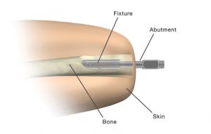 В США одобрены протезы, которые вживляются в кость пациента