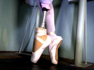 Балерина вернулась к танцам после ампутации ноги