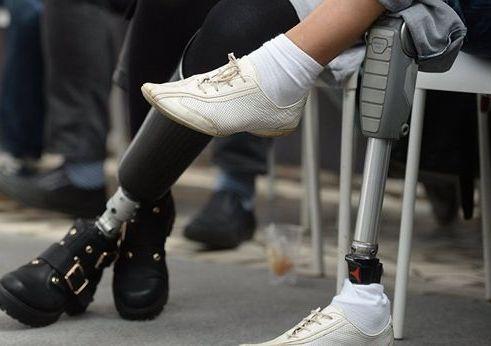 Почему ампутированные конечности «болят»