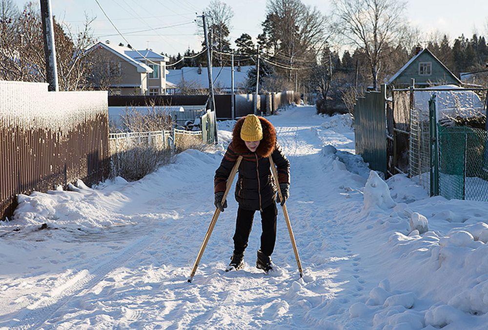 От мучений Василину смогут избавить специальные модульные протезы, в которых она будет ходить без слез и боли