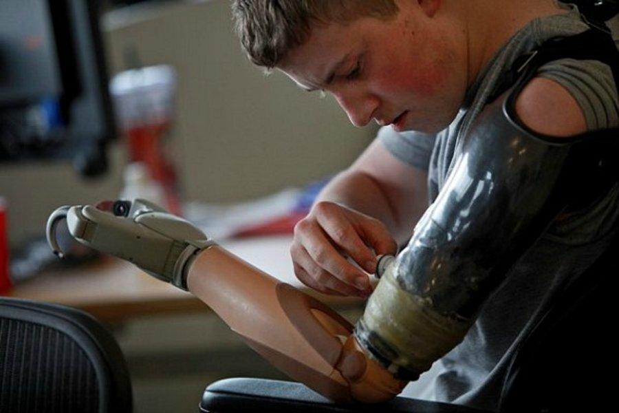 19-летний Кевин Тримбл потерял обе ноги выше колена и руку от бомбы в Афганистане