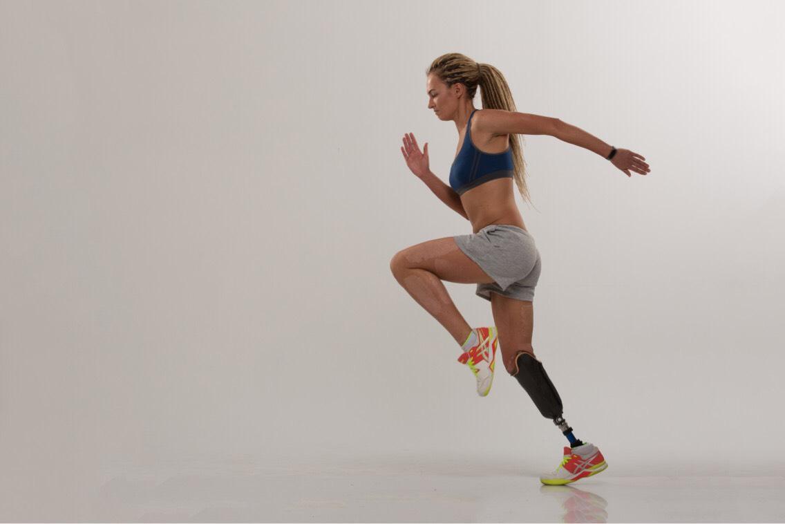 Поэтому девушка приняла нестандартное решение ампутировать ногу до колена — ведь протез позволил продолжать заниматься теннисом и бегом.