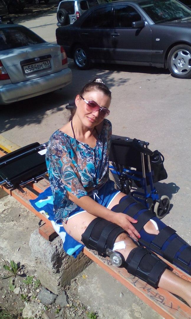 Там мне диагностировали остеомиелит. А еще через какое-то время врач-ортопед поликлиники №1 заявил: «вам уже ничего не поможет, только ампутация».