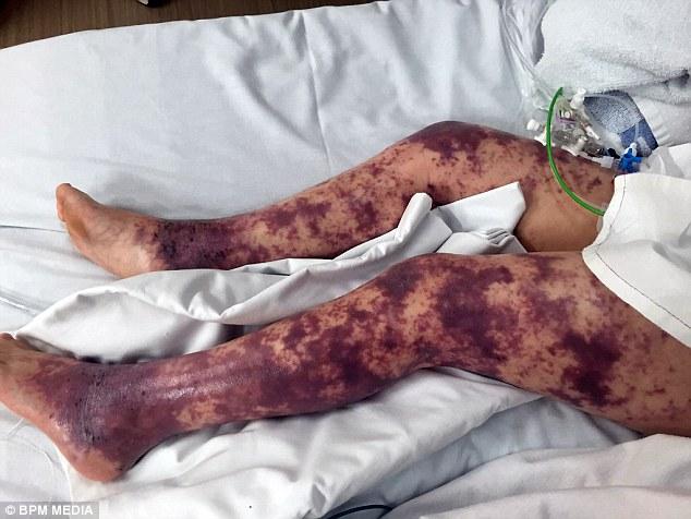 Сыпь овладела ногами Броган-Лэй, и семилетний теперь сталкивается с ампутированными пальцами и кожными трансплантатами после борьбы с смертельной инфекцией