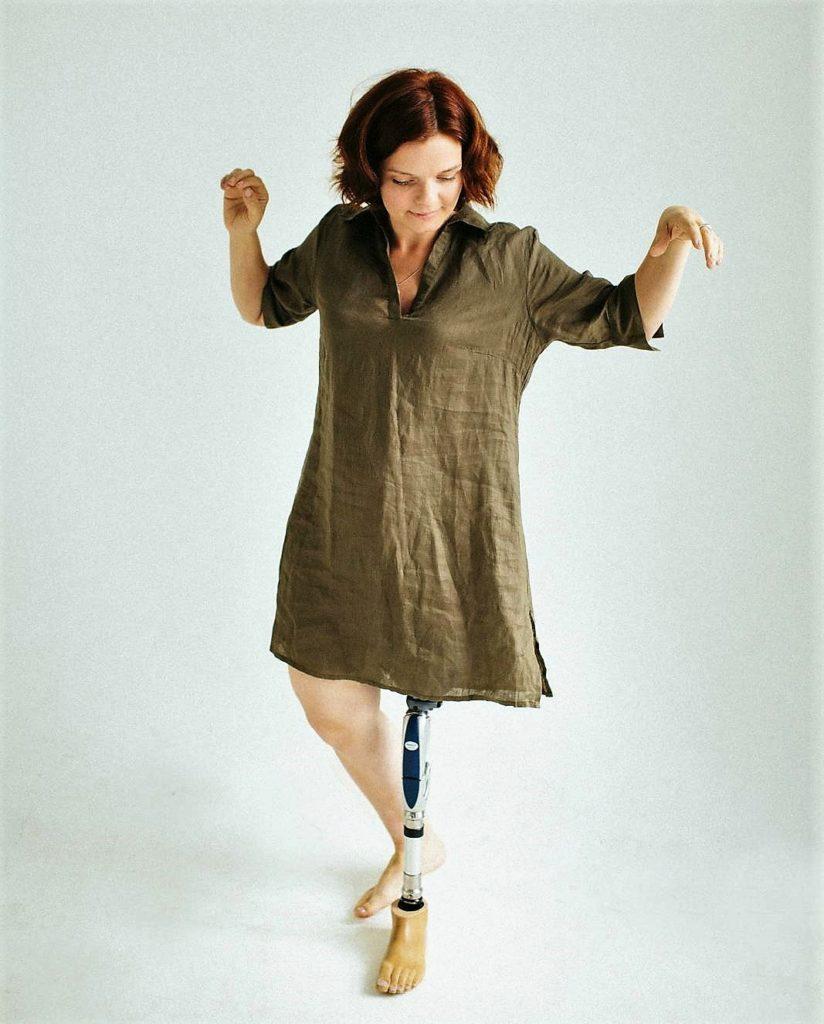 — Я из Гомеля, в Минск переехало 6 лет назад. Когда мать была беременна мной, после одного из УЗИ врачи сказали, что плод расположен неправильно и предложили сделать аборт. Но мать отказалась. Я родилась с целым «букетом» патологий левой ноги. Одно время остановку развития кости ноги объясняли тем, что ее обвила пуповина. Другие специалисты говорили, что причина в генетических изменениях. В результате, у меня хоть и было две ноги, но левая — без большеберцовой кости. Когда мне исполнилось полгода, в центре травматологии и ортопедии сделали первую операцию, чтобы как-то спасти ситуацию. Потом еще раз 8 ставили аппарат Илизарова — вытягивали ногу, как могли, засовывая туда спицы, гипсовали и делали вытяжку.